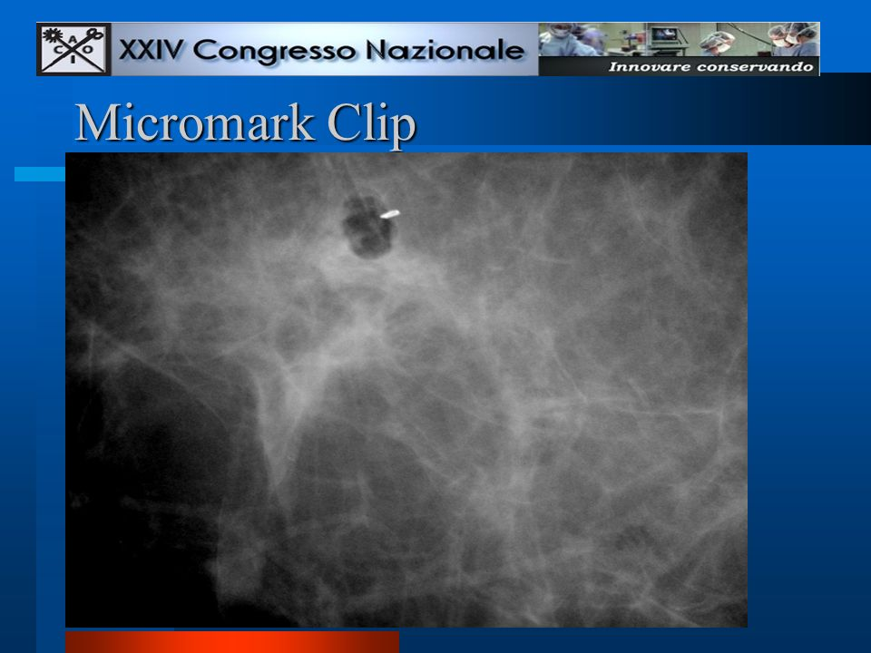 Micromark Clip