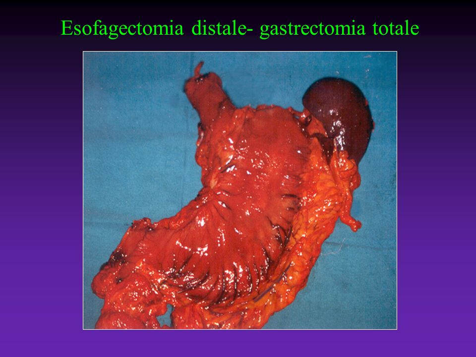 Esofagectomia distale- gastrectomia totale