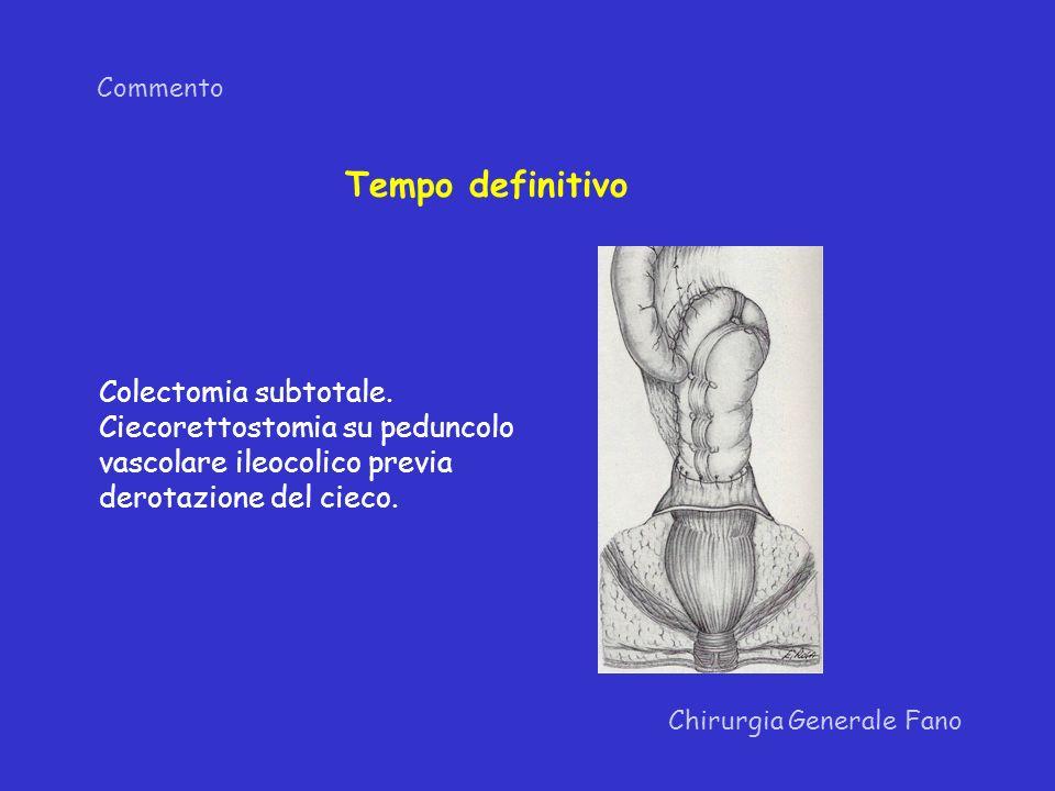 Tempo definitivo Colectomia subtotale. Ciecorettostomia su peduncolo