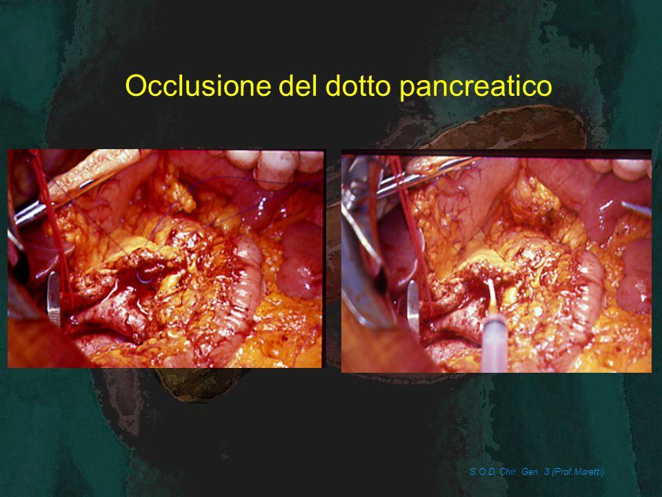 Occlusione del dotto pancreatico