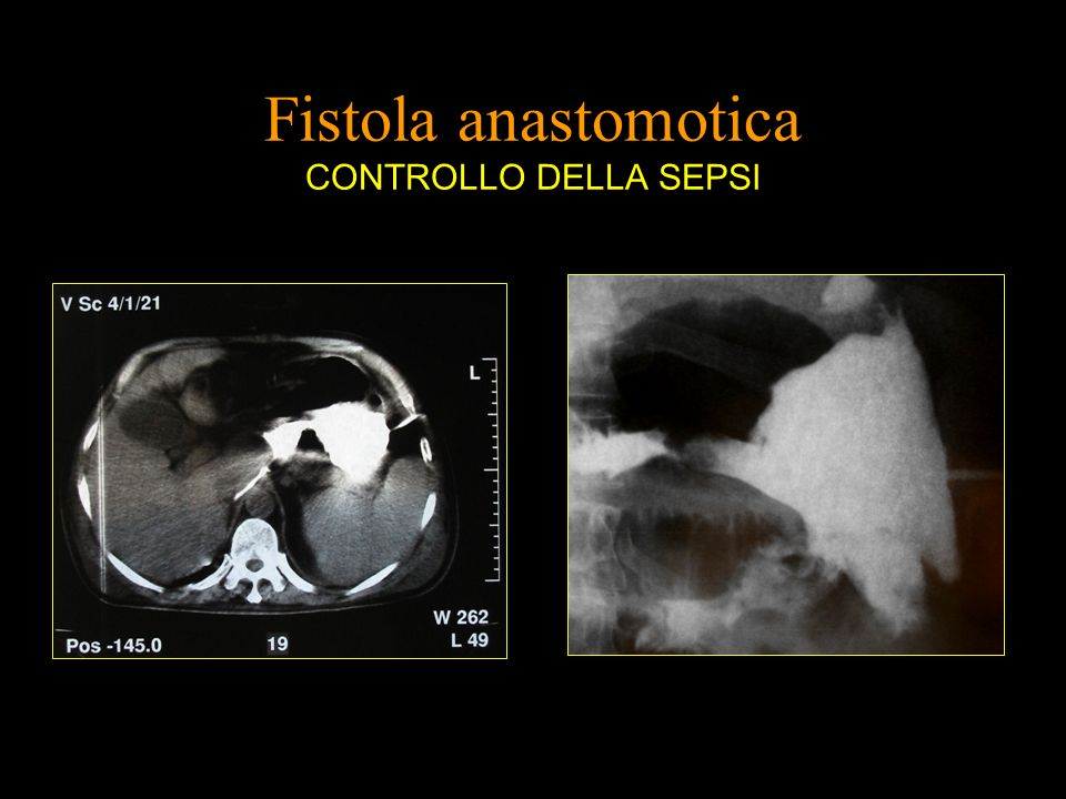 Fistola anastomotica CONTROLLO DELLA SEPSI