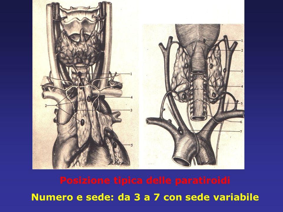 Posizione tipica delle paratiroidi