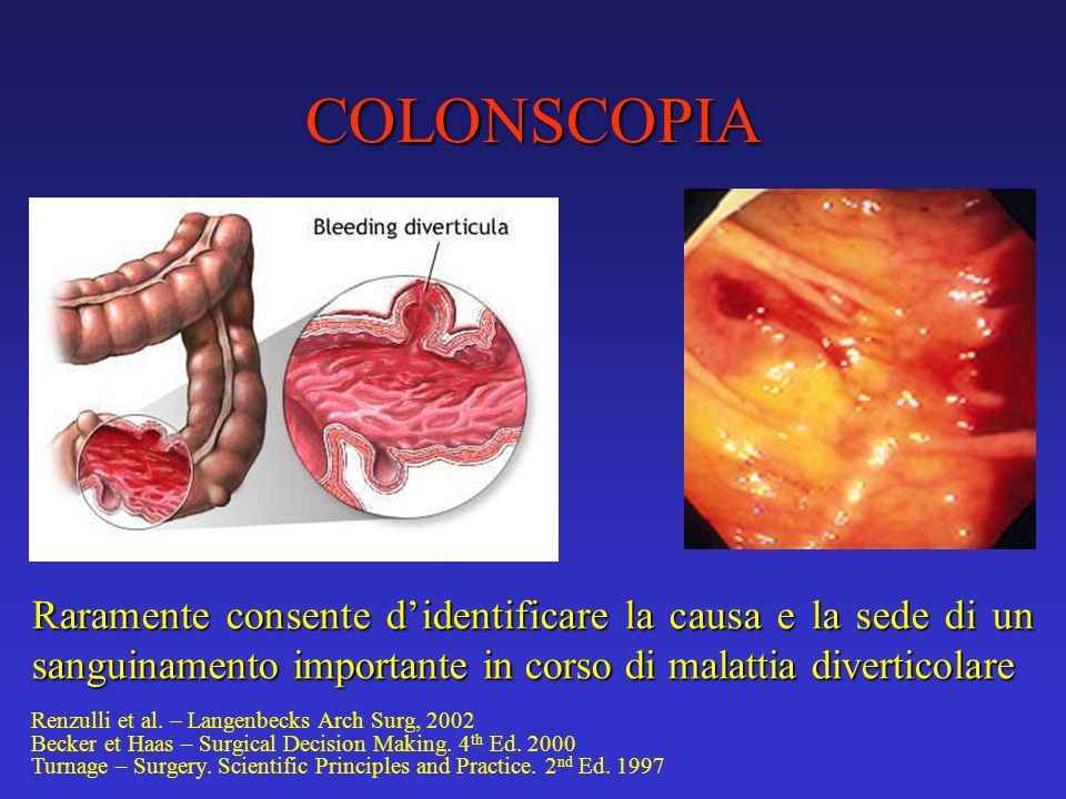 COLONSCOPIA Raramente consente d'identificare la causa e la sede di un sanguinamento importante in corso di malattia diverticolare.