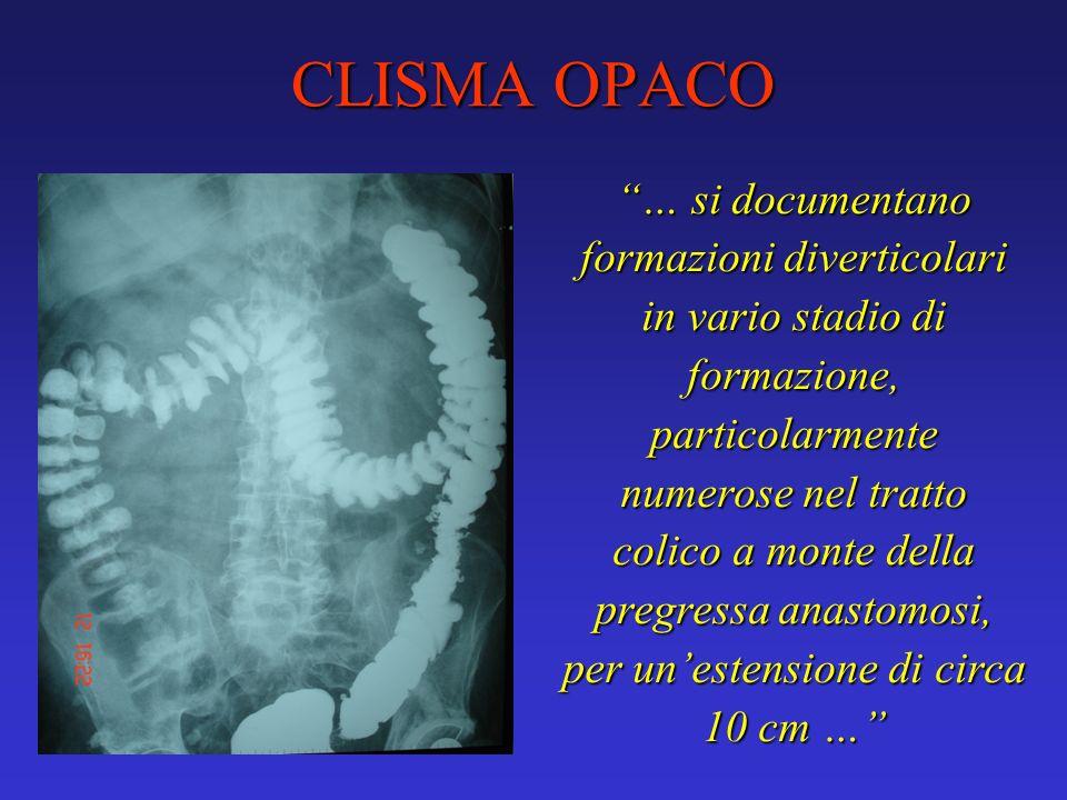 CLISMA OPACO