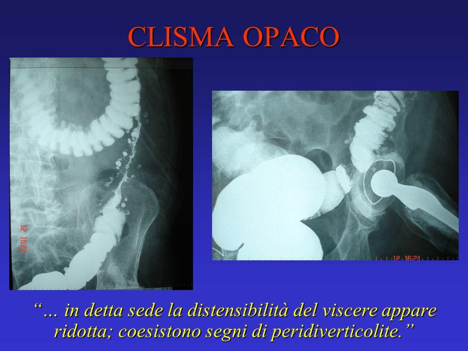 CLISMA OPACO … in detta sede la distensibilità del viscere appare ridotta; coesistono segni di peridiverticolite.