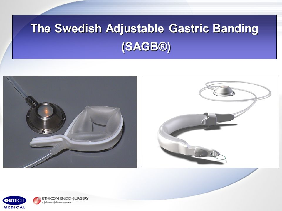 The Swedish Adjustable Gastric Banding (SAGB®)