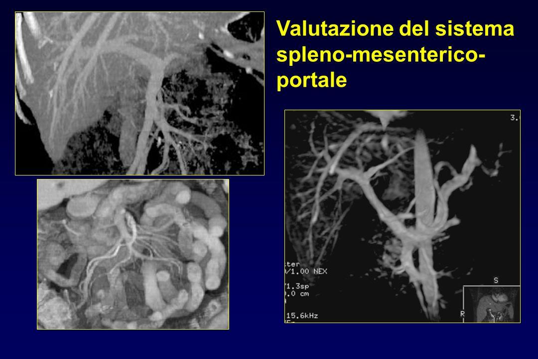Valutazione del sistema spleno-mesenterico-portale