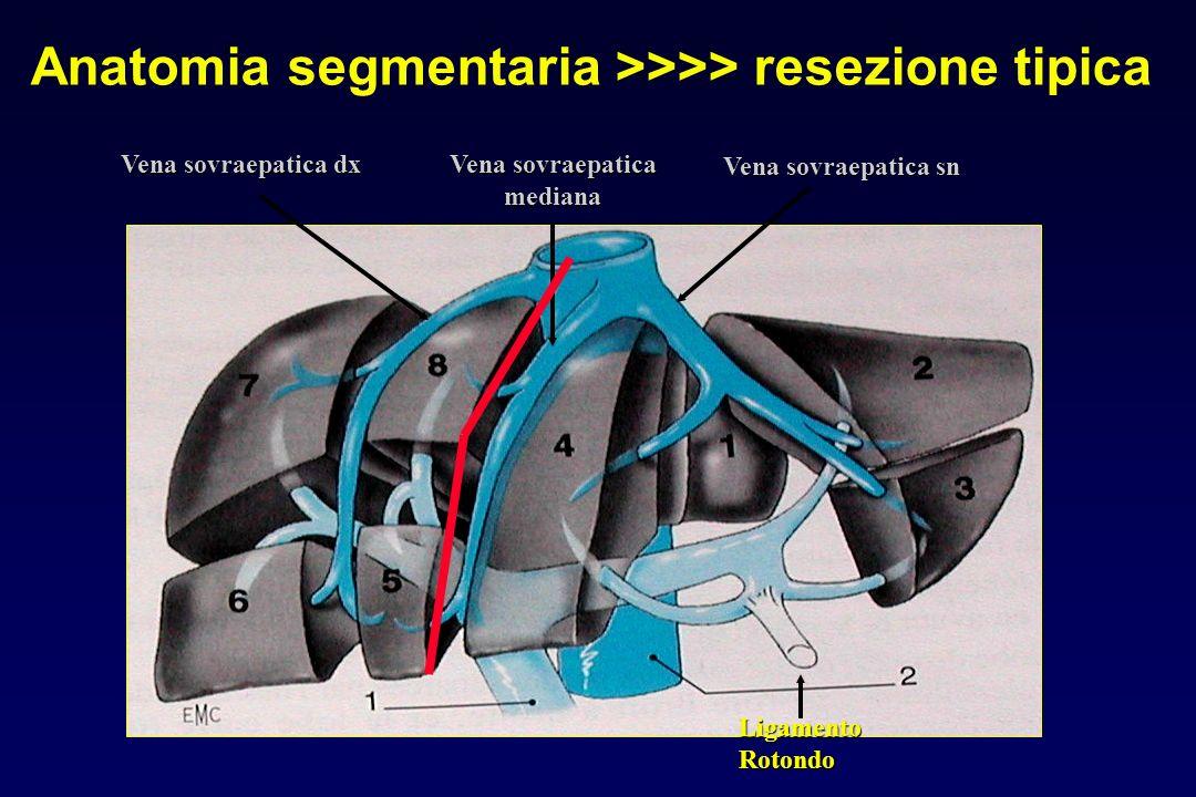 Anatomia segmentaria >>>> resezione tipica
