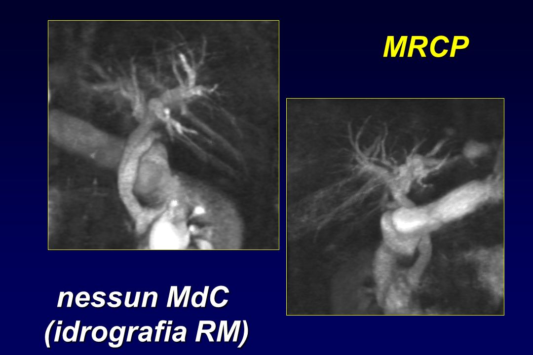 MRCP nessun MdC (idrografia RM)