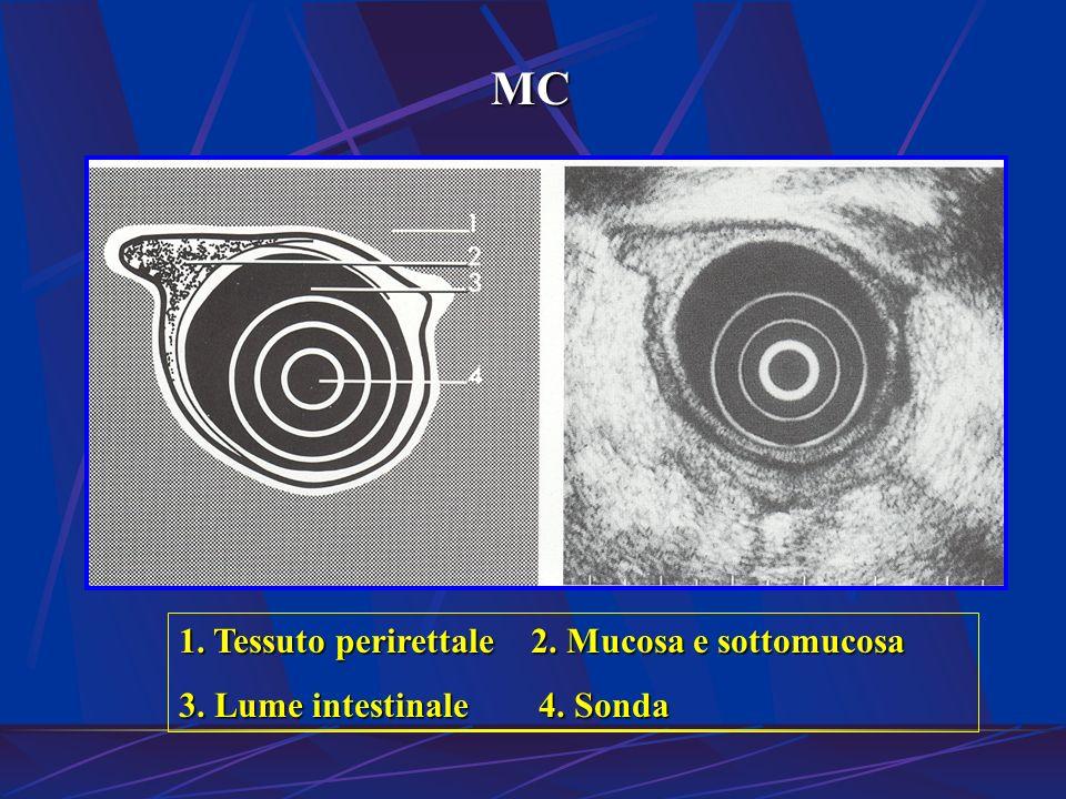 MC 1. Tessuto perirettale 2. Mucosa e sottomucosa
