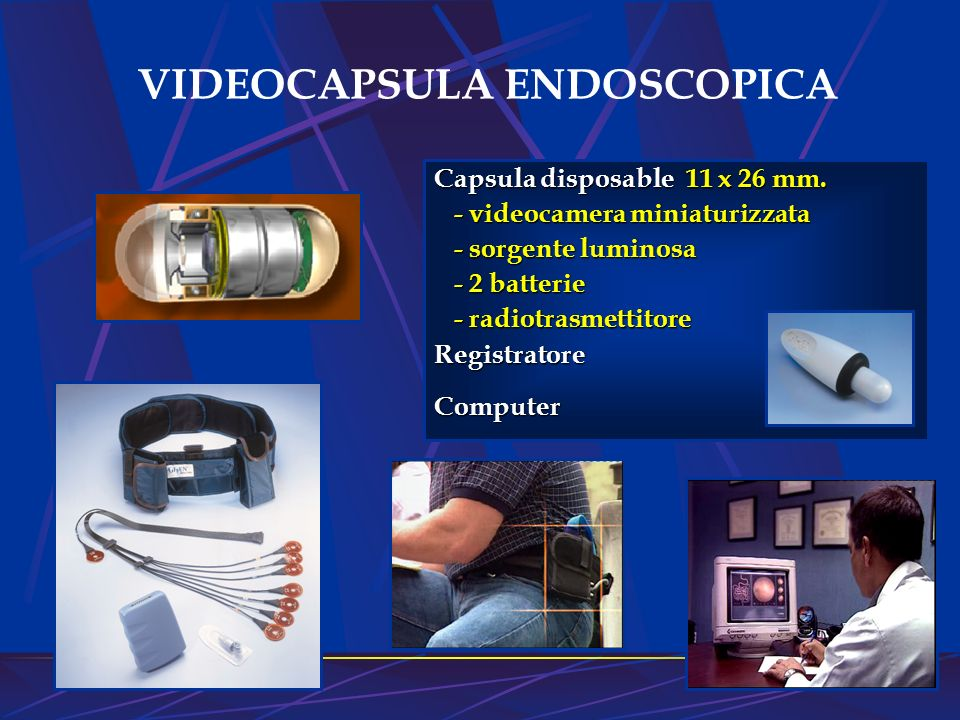 VIDEOCAPSULA ENDOSCOPICA