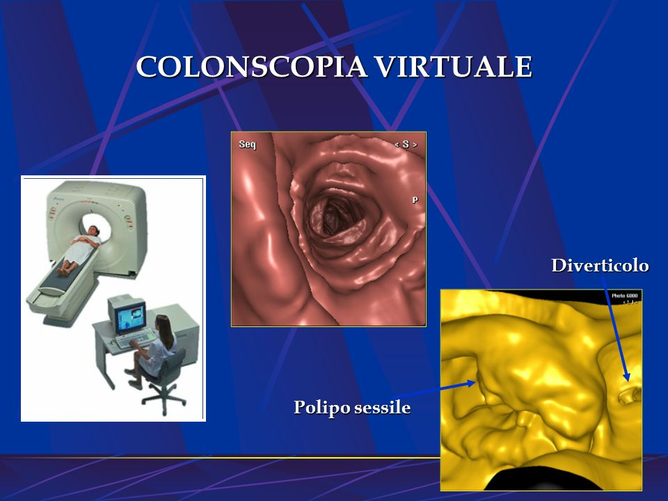 COLONSCOPIA VIRTUALE Diverticolo Polipo sessile