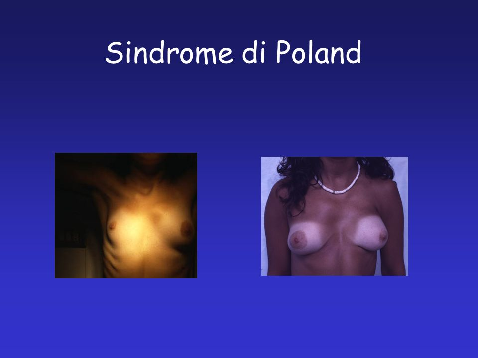 Sindrome di Poland