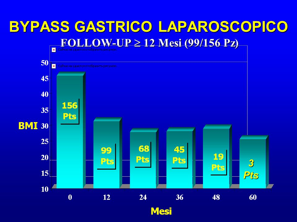 BYPASS GASTRICO LAPAROSCOPICO FOLLOW-UP  12 Mesi (99/156 Pz)