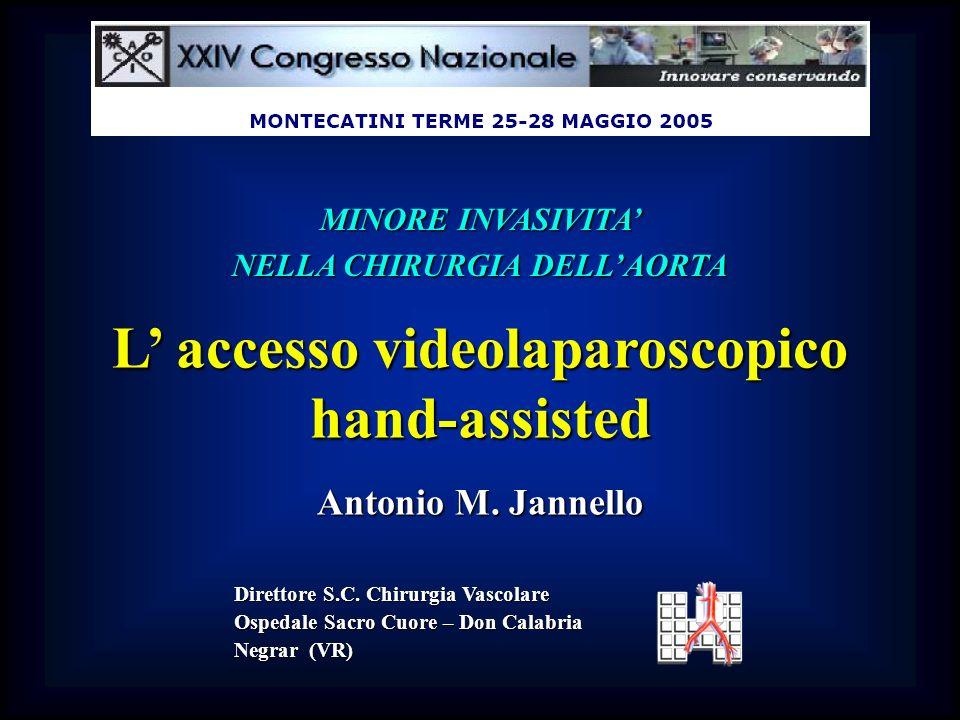 NELLA CHIRURGIA DELL'AORTA L' accesso videolaparoscopico hand-assisted