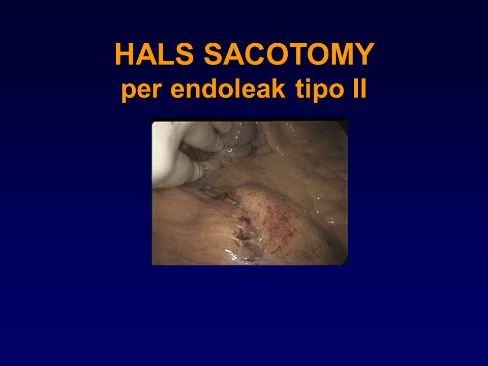 HALS SACOTOMY per endoleak tipo II