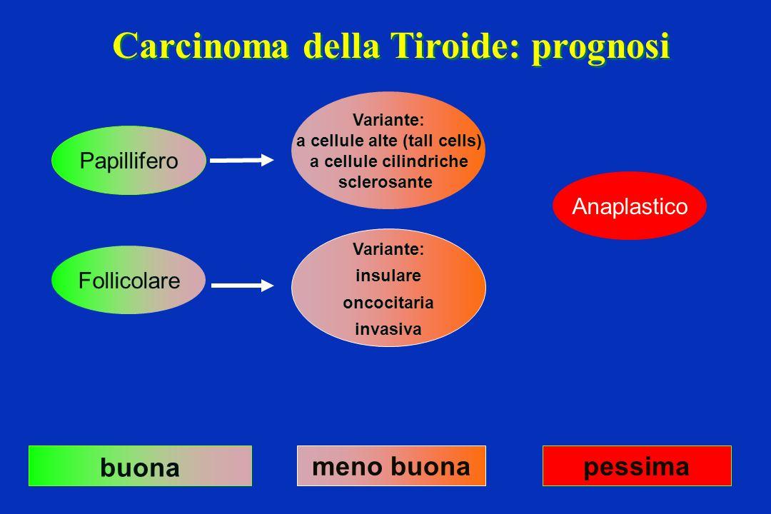 Carcinoma della Tiroide: prognosi a cellule alte (tall cells)