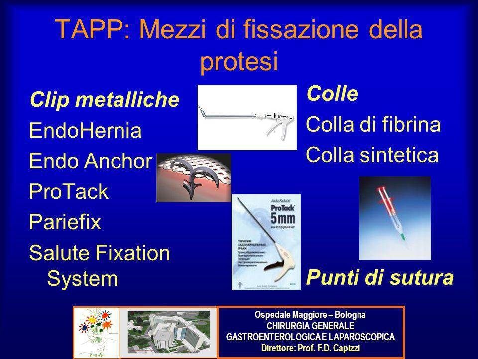 TAPP: Mezzi di fissazione della protesi