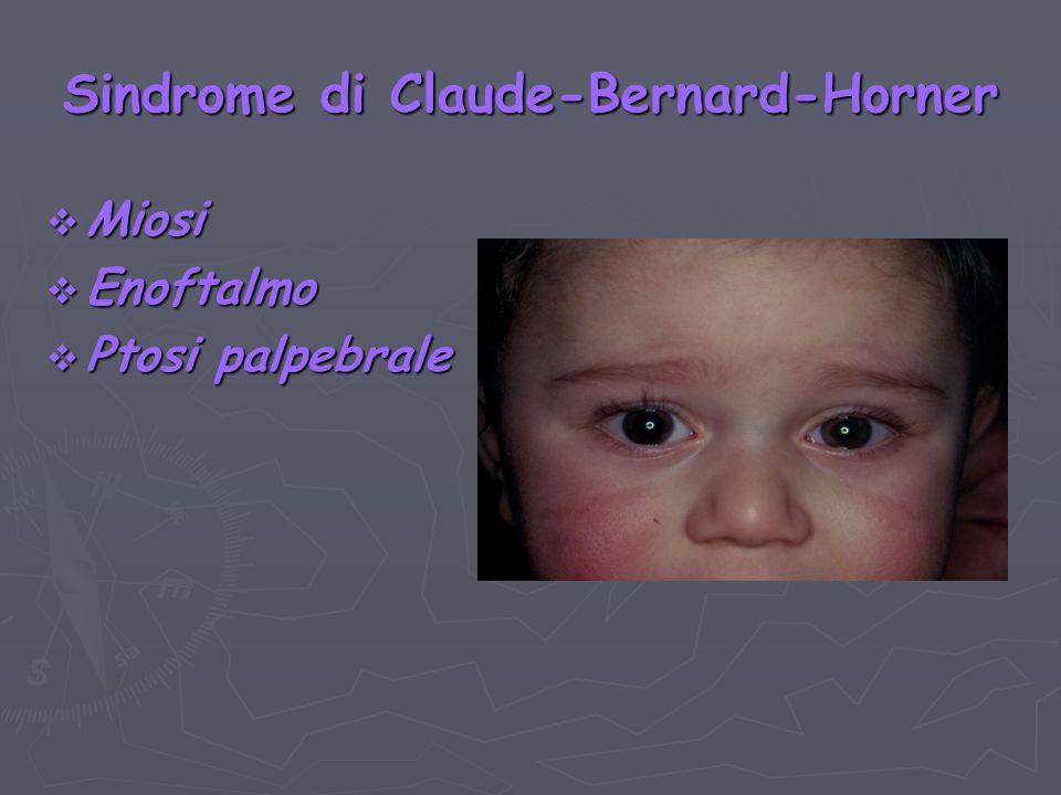 Sindrome di Claude-Bernard-Horner