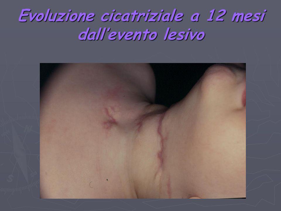 Evoluzione cicatriziale a 12 mesi dall'evento lesivo