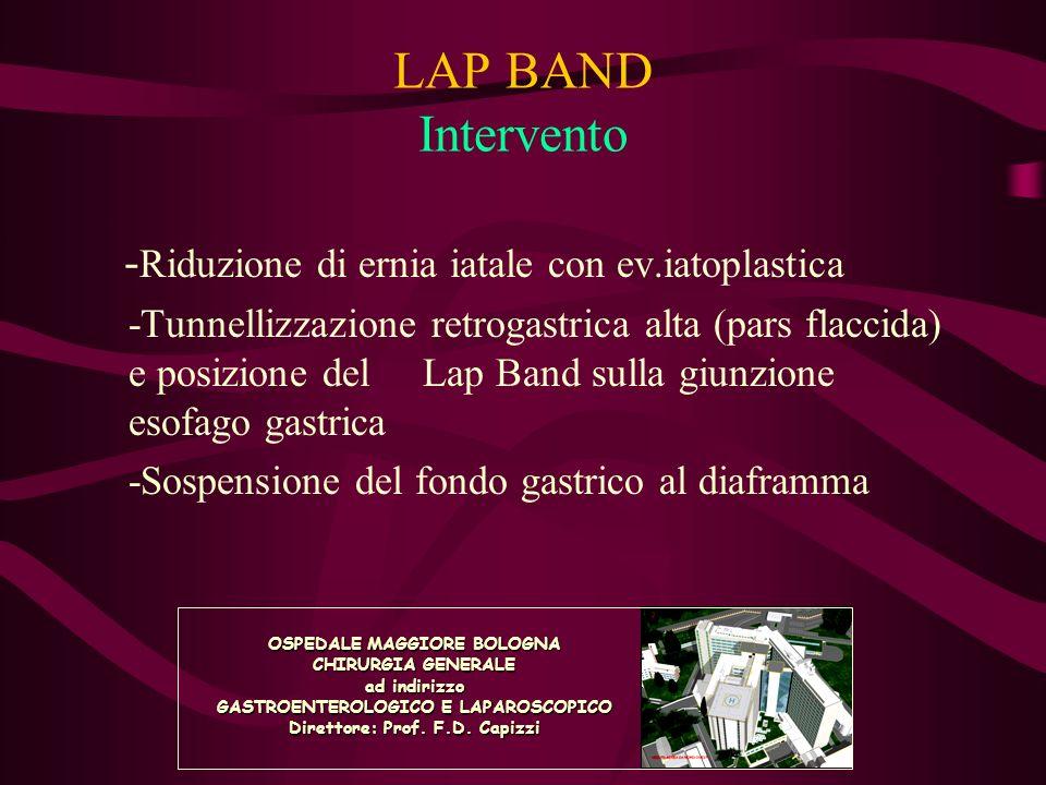 LAP BAND Intervento -Riduzione di ernia iatale con ev.iatoplastica