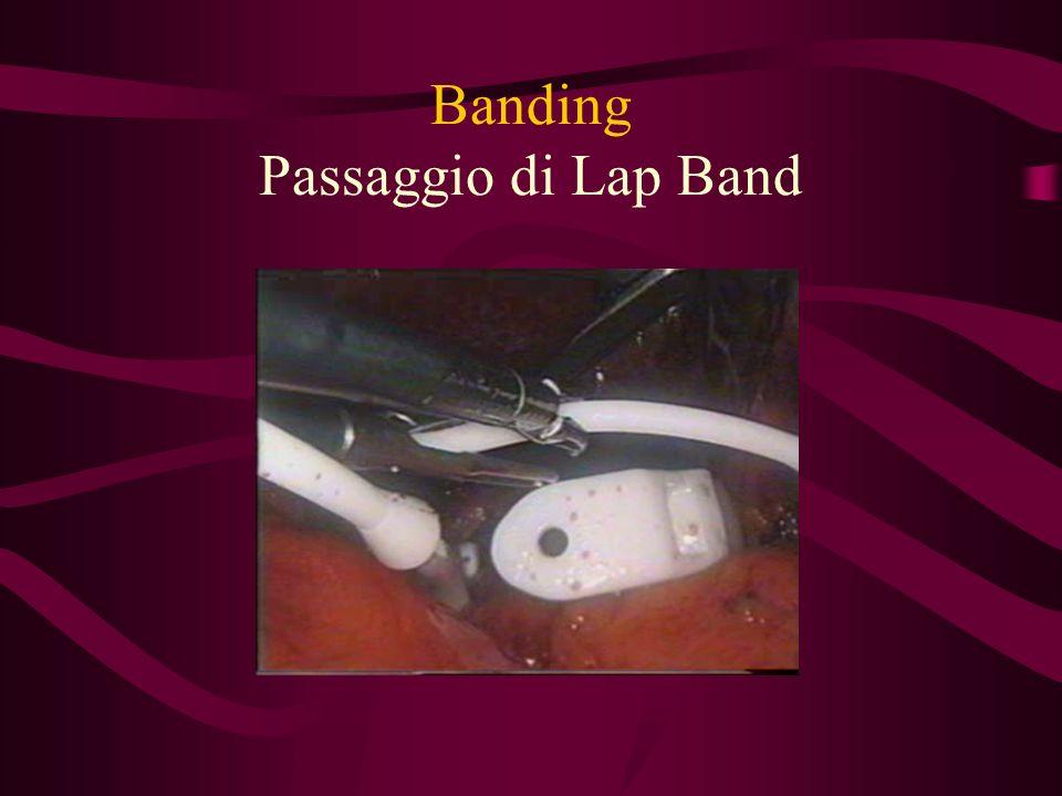 Banding Passaggio di Lap Band