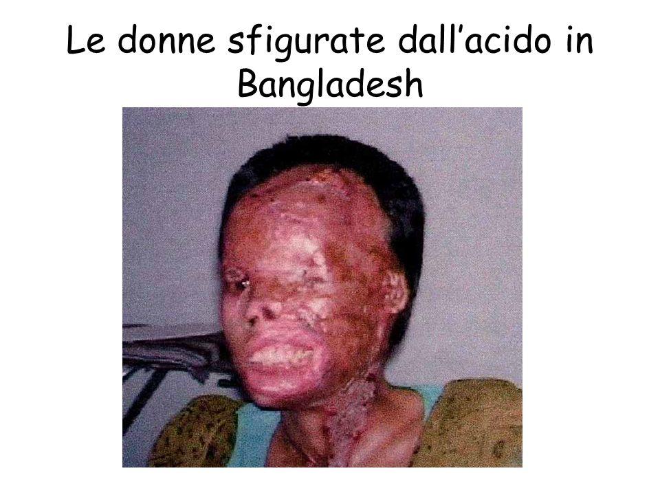 Le donne sfigurate dall'acido in Bangladesh