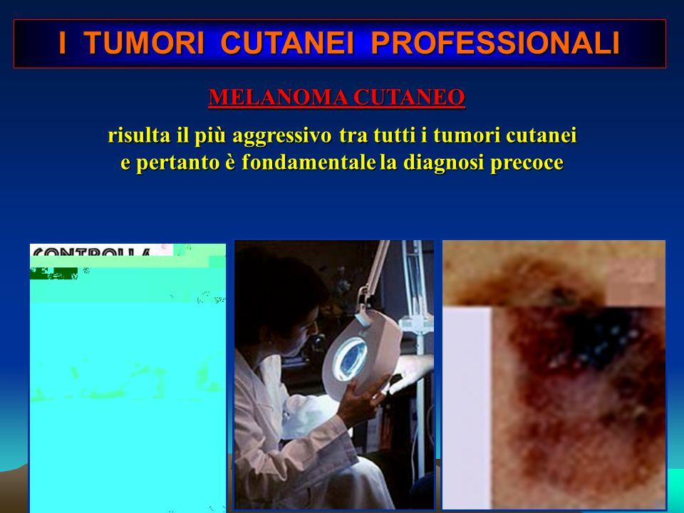 I TUMORI CUTANEI PROFESSIONALI