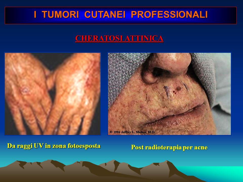 I TUMORI CUTANEI PROFESSIONALI Post radioterapia per acne