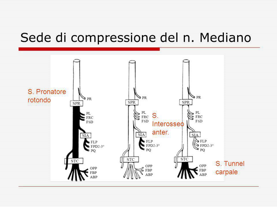 Sede di compressione del n. Mediano