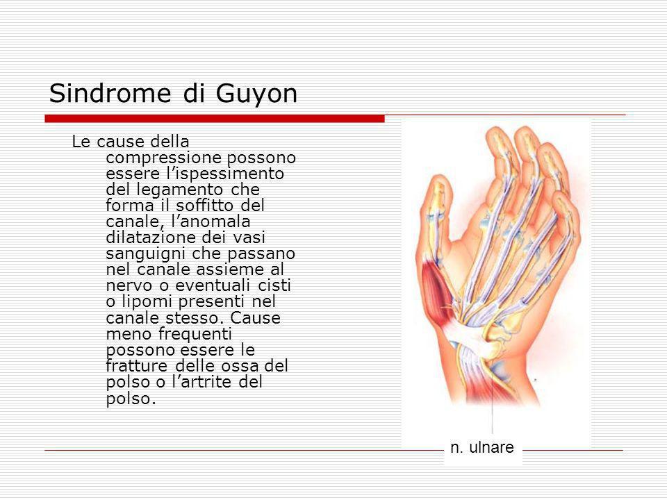 Sindrome di Guyon