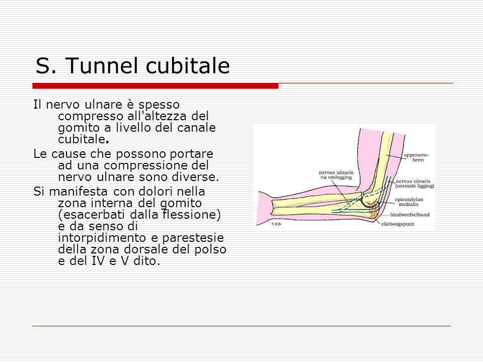 S. Tunnel cubitale Il nervo ulnare è spesso compresso all altezza del gomito a livello del canale cubitale.