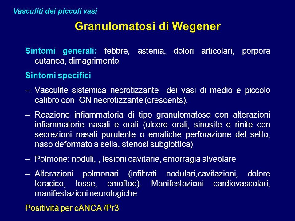 Granulomatosi di Wegener