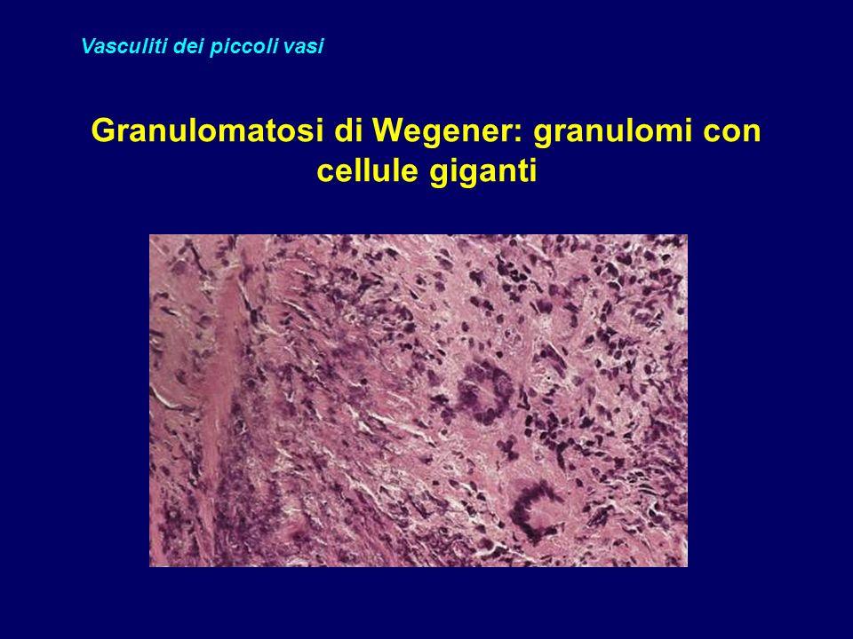 Granulomatosi di Wegener: granulomi con cellule giganti