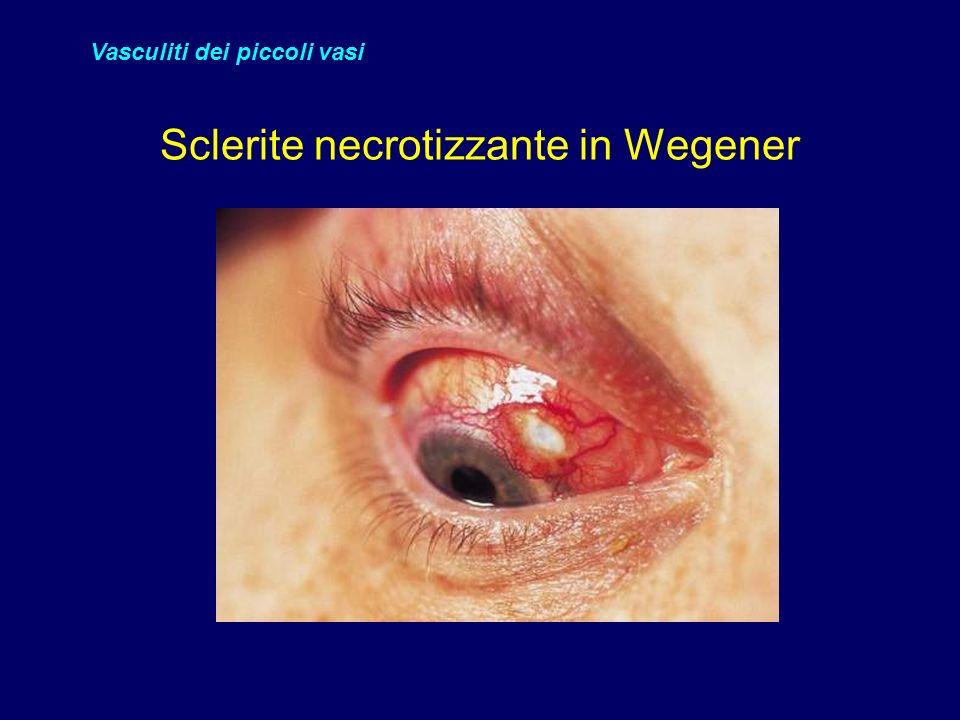 Sclerite necrotizzante in Wegener