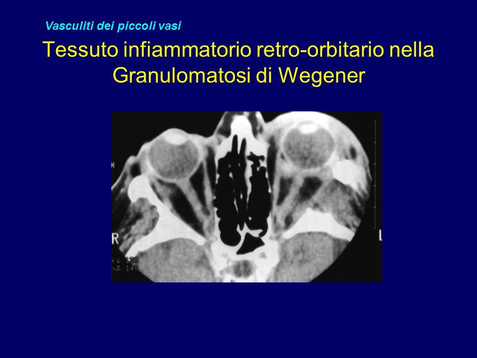 Tessuto infiammatorio retro-orbitario nella Granulomatosi di Wegener