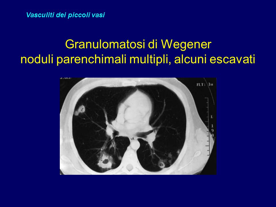Granulomatosi di Wegener noduli parenchimali multipli, alcuni escavati