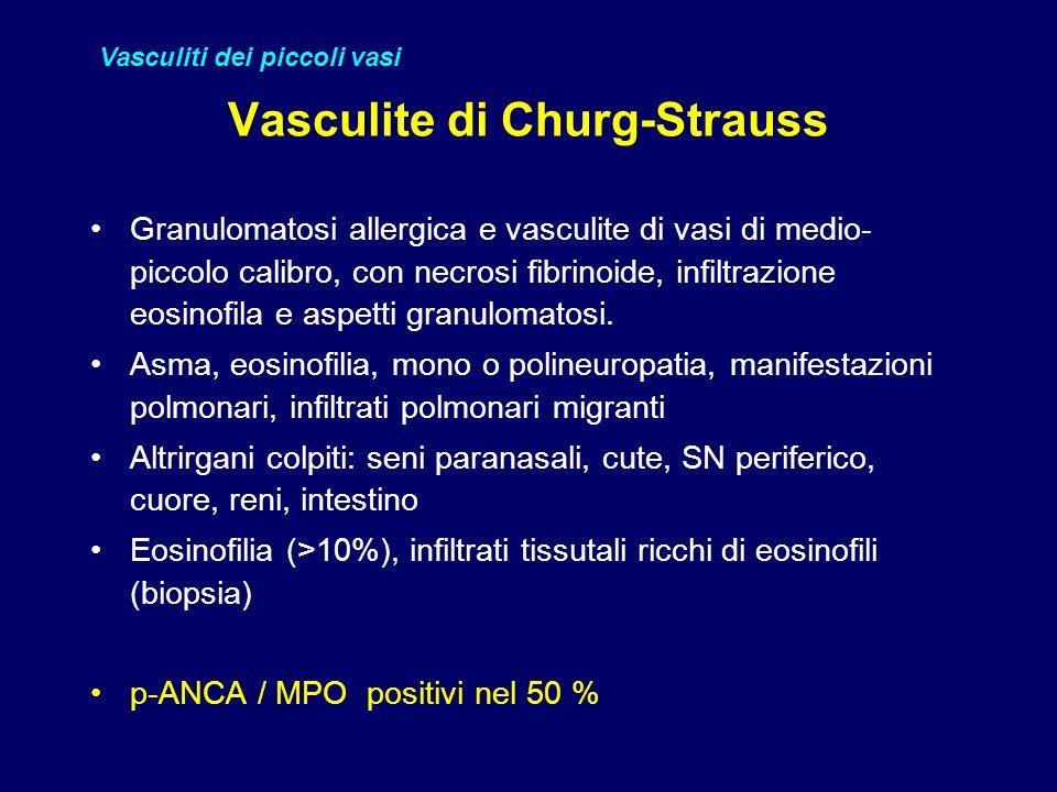 Vasculite di Churg-Strauss
