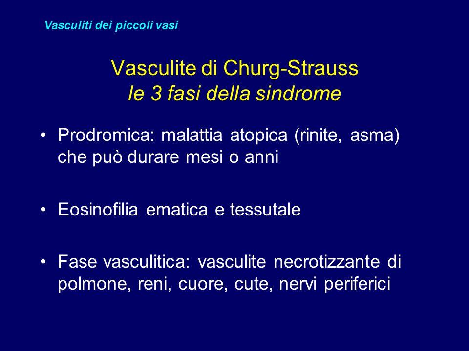 Vasculite di Churg-Strauss le 3 fasi della sindrome