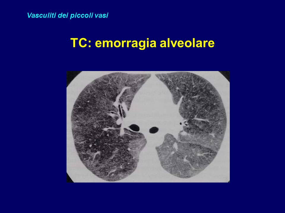 TC: emorragia alveolare
