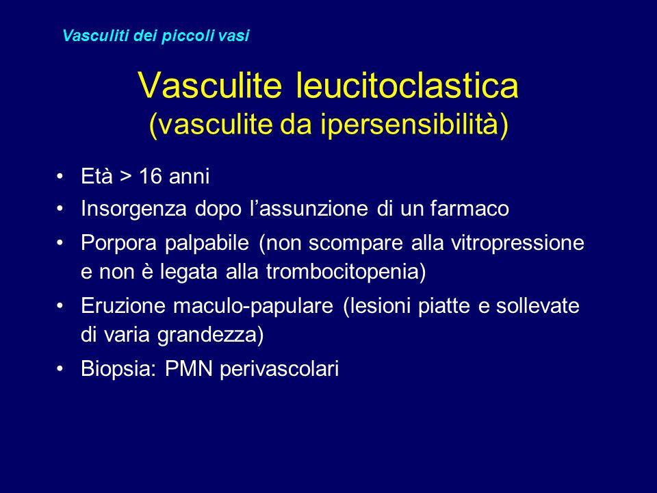 Vasculite leucitoclastica (vasculite da ipersensibilità)
