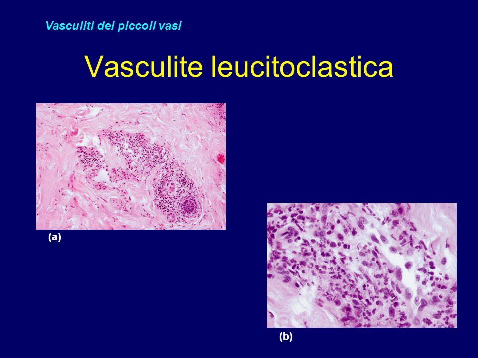 Vasculite leucitoclastica