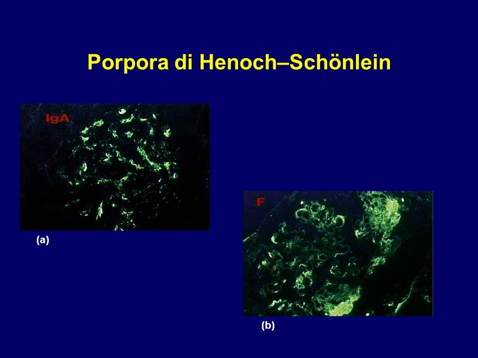 Porpora di Henoch–Schönlein