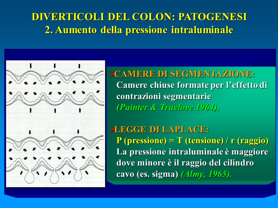 DIVERTICOLI DEL COLON: PATOGENESI