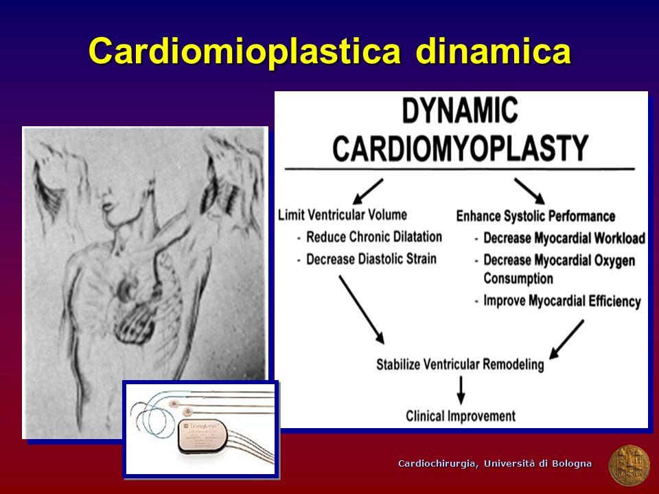 Cardiomioplastica dinamica
