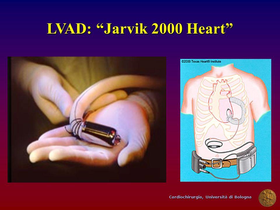 LVAD: Jarvik 2000 Heart