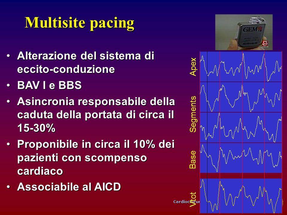 Multisite pacing Alterazione del sistema di eccito-conduzione