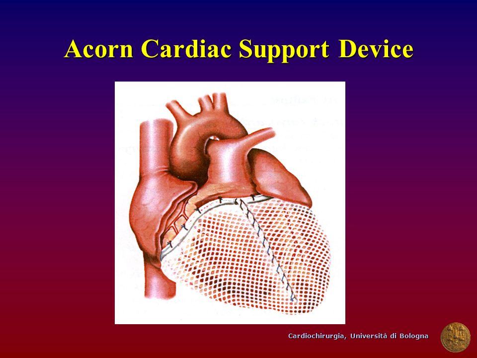 Acorn Cardiac Support Device