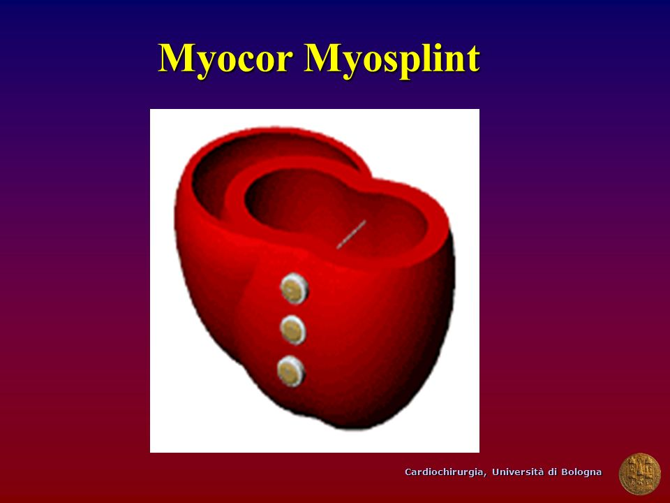Myocor Myosplint