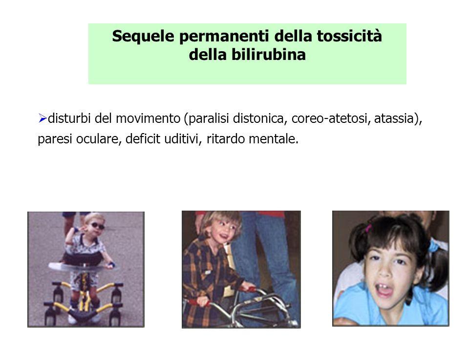Sequele permanenti della tossicità della bilirubina